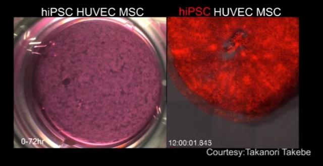 Functioning livers created using human stem cells